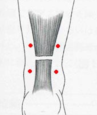 アキレス腱断裂の治療最近の投稿カテゴリーアーカイブ 最近の投稿営業日