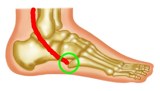 が の 痛い 足 の 甲 外側