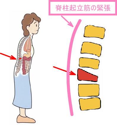 腰椎 圧迫 骨折 寝る 姿勢 第12胸椎圧迫骨折の寝かたについて教えて下さい。圧迫骨折をしてやっ...