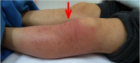 蜂窩織炎の場合