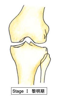 膝離断性骨軟骨炎(スポーツ中に膝がガクっとなるのは、なぜ ...